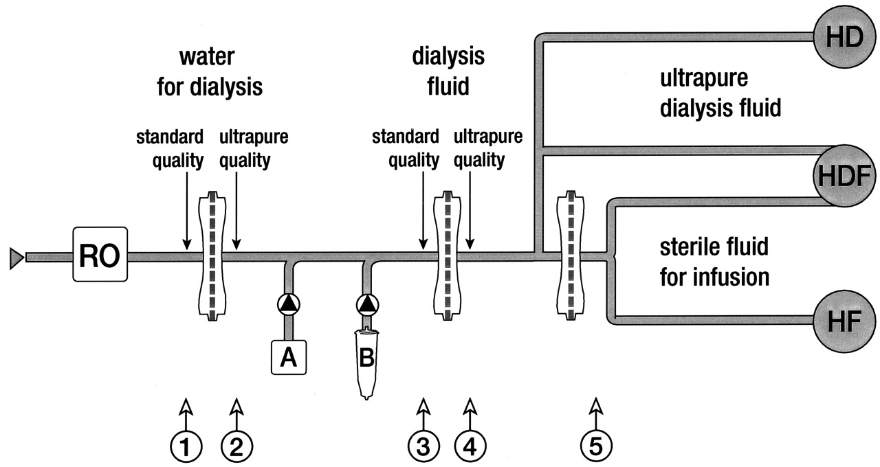 On Line Preparation Of Solutions For Dialysis Practical Aspects