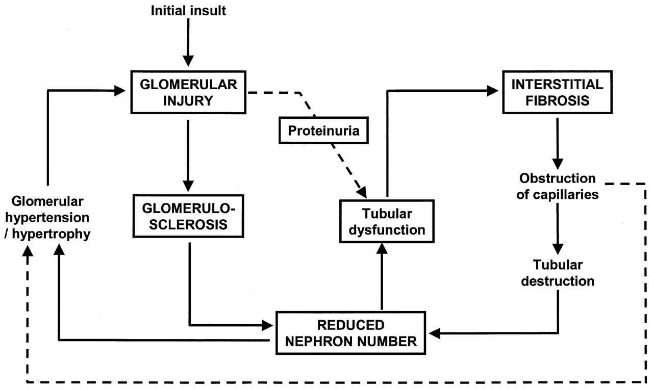 Anemia management and the delay of chronic renal failure progression schematic representation of the mechanisms of progression of glomerular diseases an initial glomerular insult is responsible for glomerulosclerosis ccuart Images