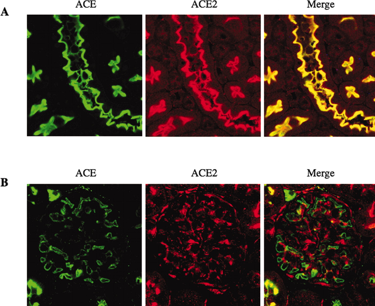 Glomerular Localization and Expression of Angiotensin