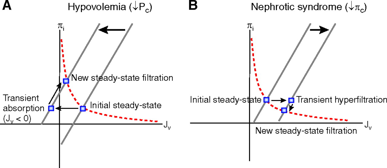 Body Fluid Dynamics: Back to the Future | American Society of Nephrology
