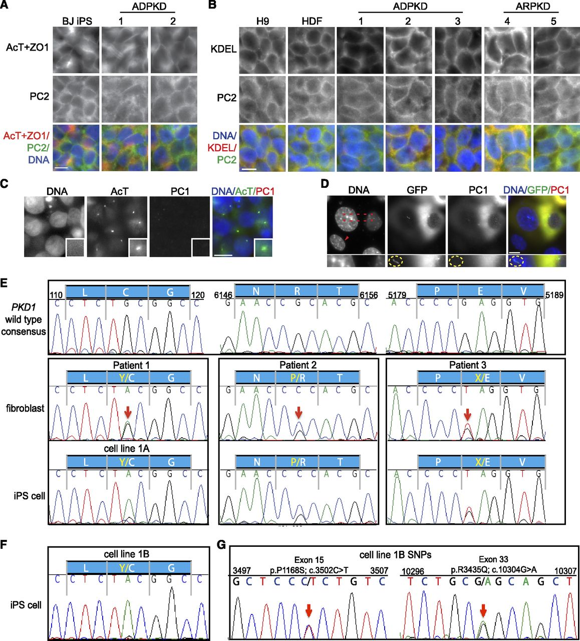 Reduced Ciliary Polycystin-2 in Induced Pluripotent Stem Cells from