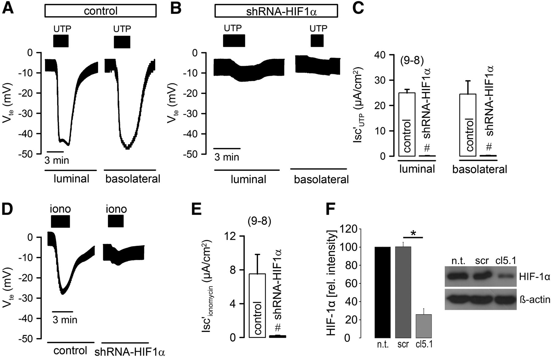 Hypoxia-Inducible Factor-1α Causes Renal Cyst Expansion through