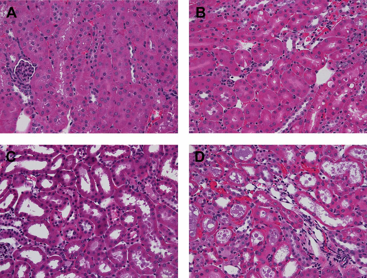 Renal Cortical Pyruvate Depletion During Aki American Society Of