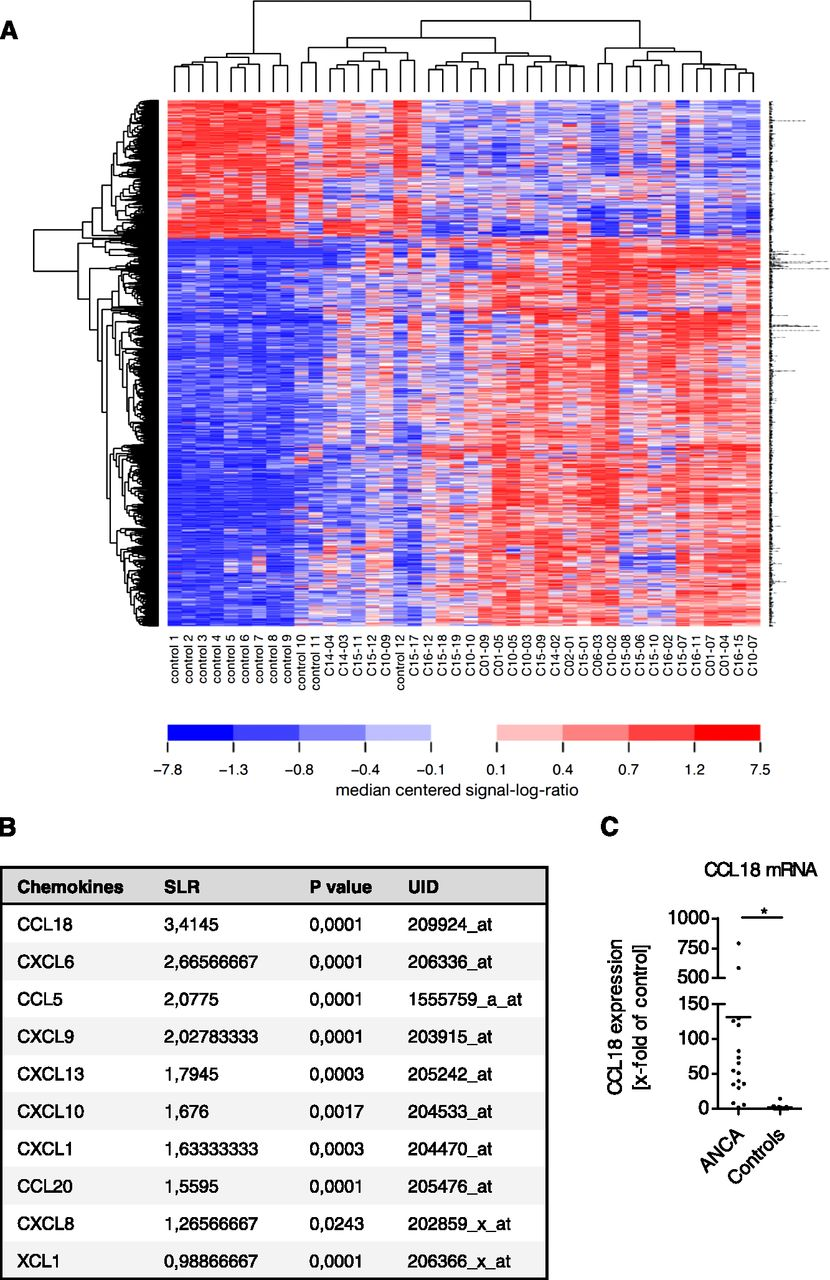 Cc Chemokine Ligand 18 In Anca Associated Crescentic Gn American Figure 3 A Pest Repeller Based On 556 Dual 555 Timer Download
