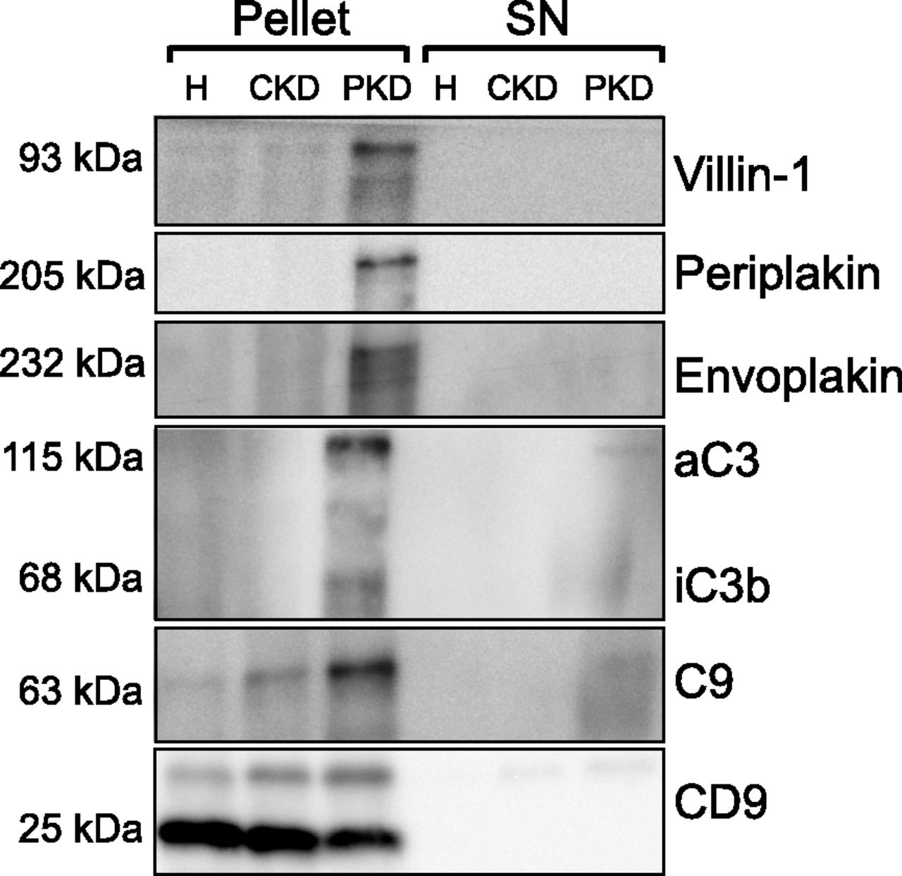Proteomics of Urinary Vesicles Links Plakins and Complement to