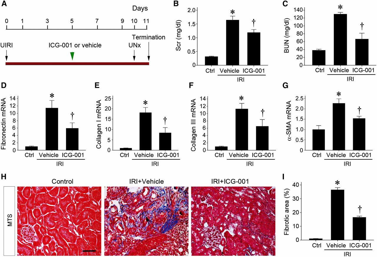 Sustained Activation of Wnt/β-Catenin Signaling Drives AKI