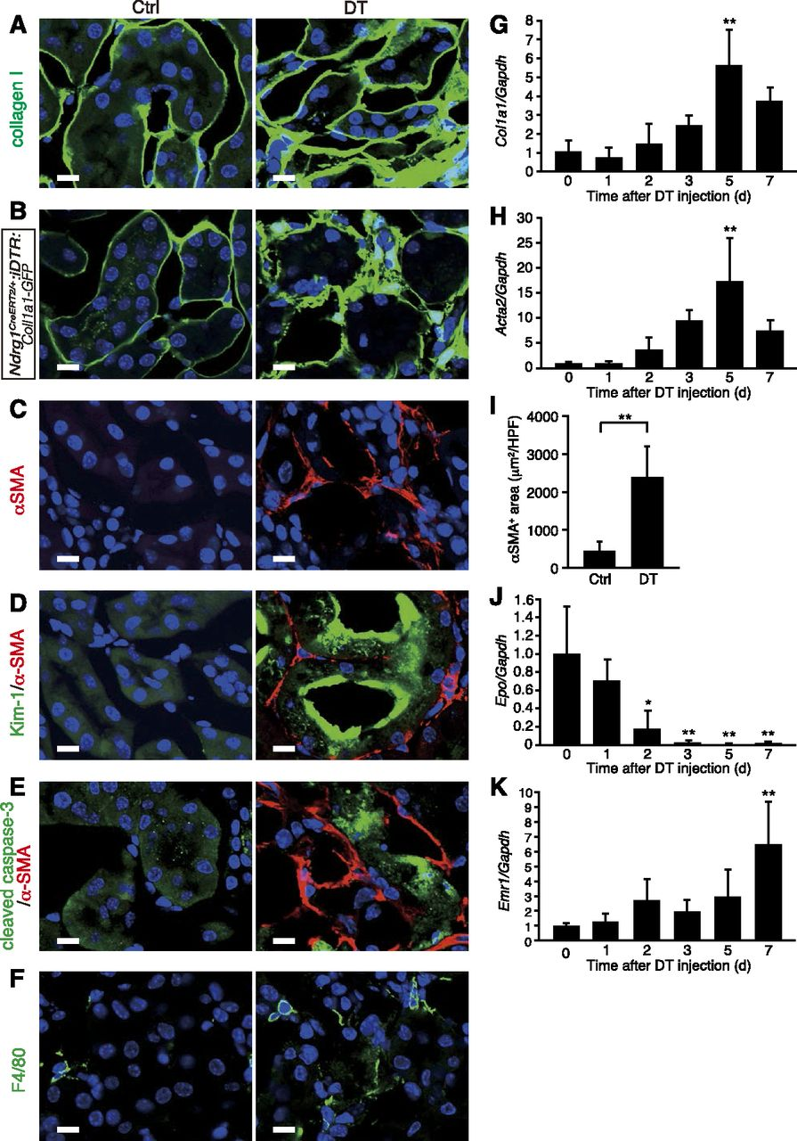 Severity and Frequency of Proximal Tubule Injury Determines
