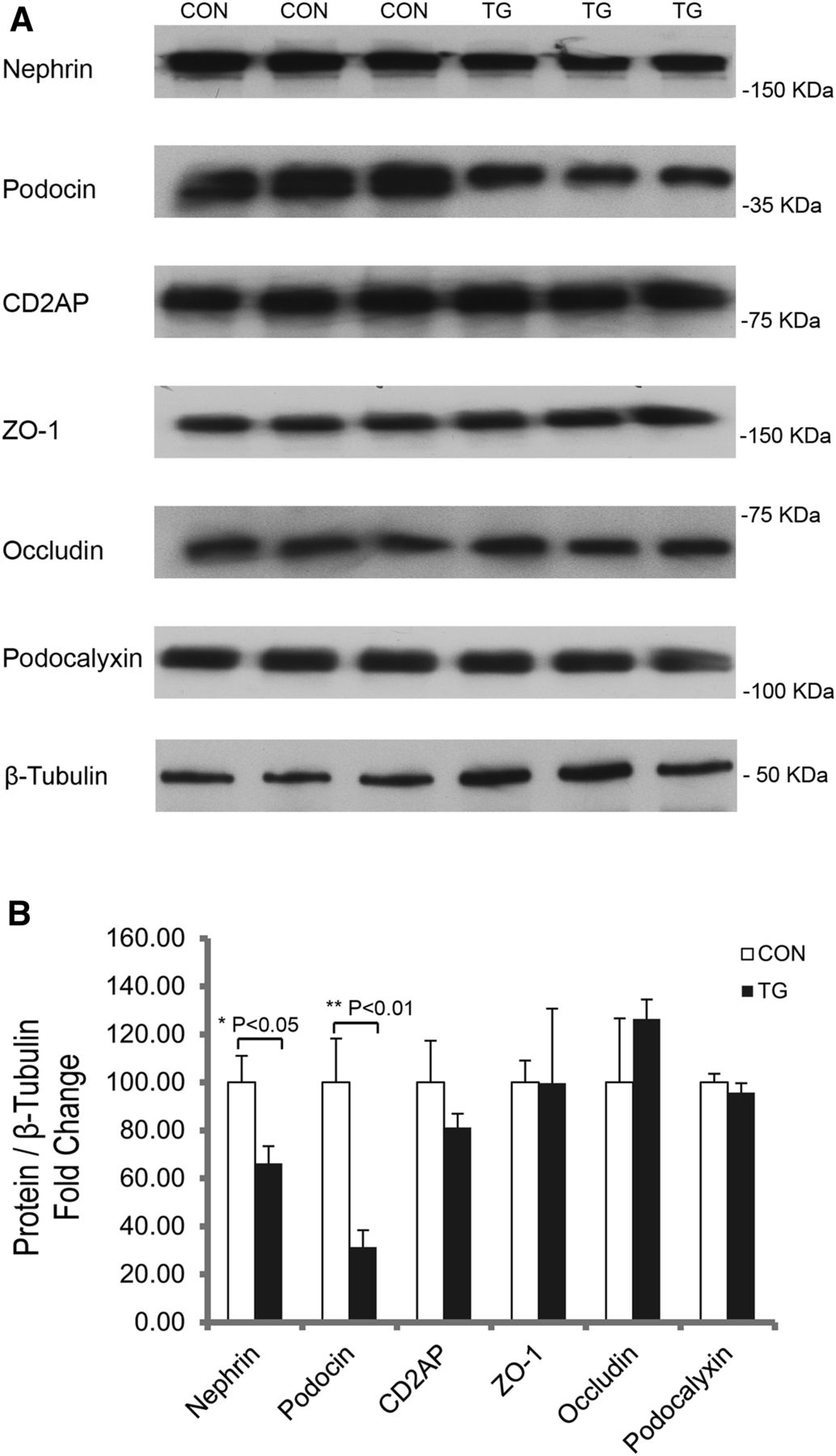 Inducible Expression of Claudin-1 in Glomerular Podocytes