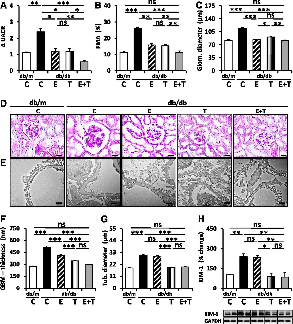 Farnesoid X Receptor Agonism Protects against Diabetic