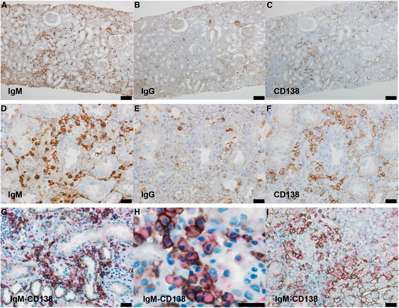 Tubulointerstitial Nephritis with IgM-Positive Plasma Cells