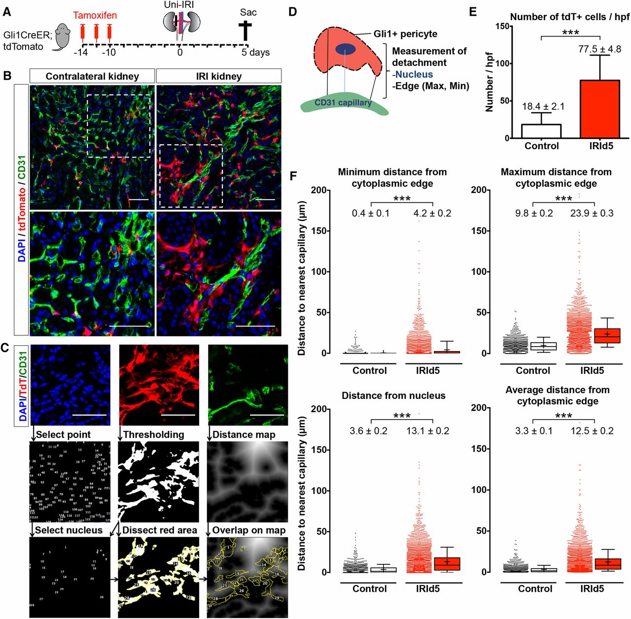 Gli1  Pericyte Loss Induces Capillary Rarefaction And
