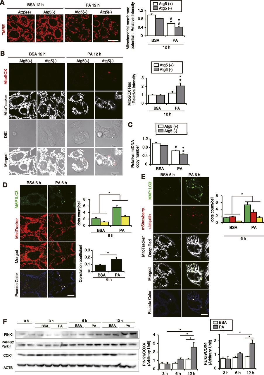 High Fat Dietinduced Lysosomal Dysfunction And Impaired Autophagic Fuse Box B Q Download Figure
