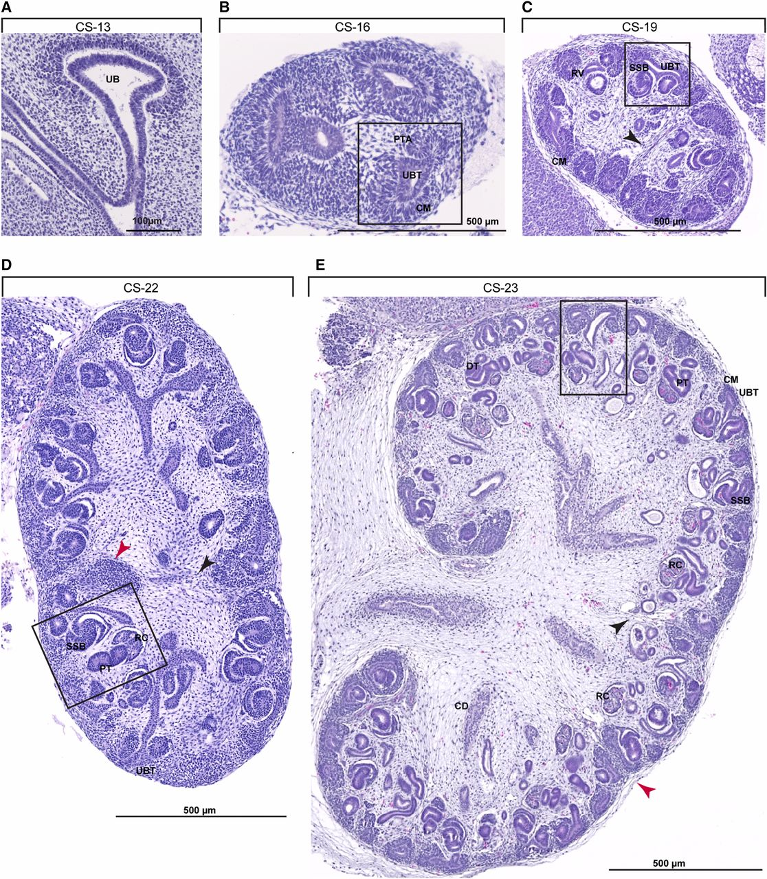 Conserved And Divergent Features Of Human And Mouse Kidney