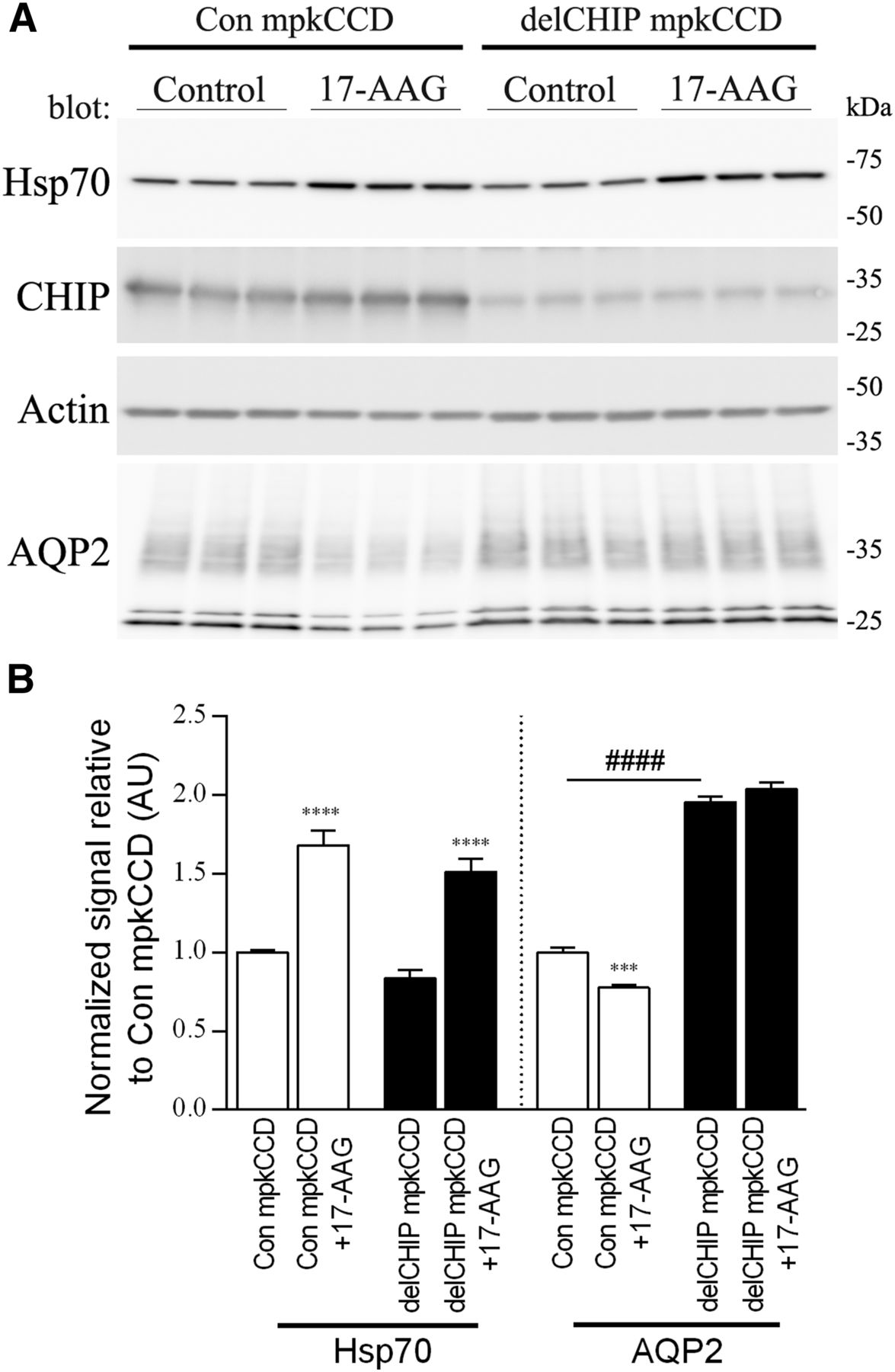 chip regulates aquaporin 2 quality control and body water