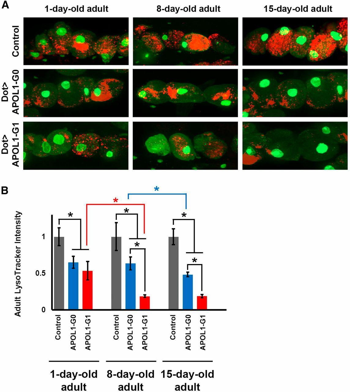 APOL1-G1 in Nephrocytes Induces Hypertrophy and Accelerates Cell ...