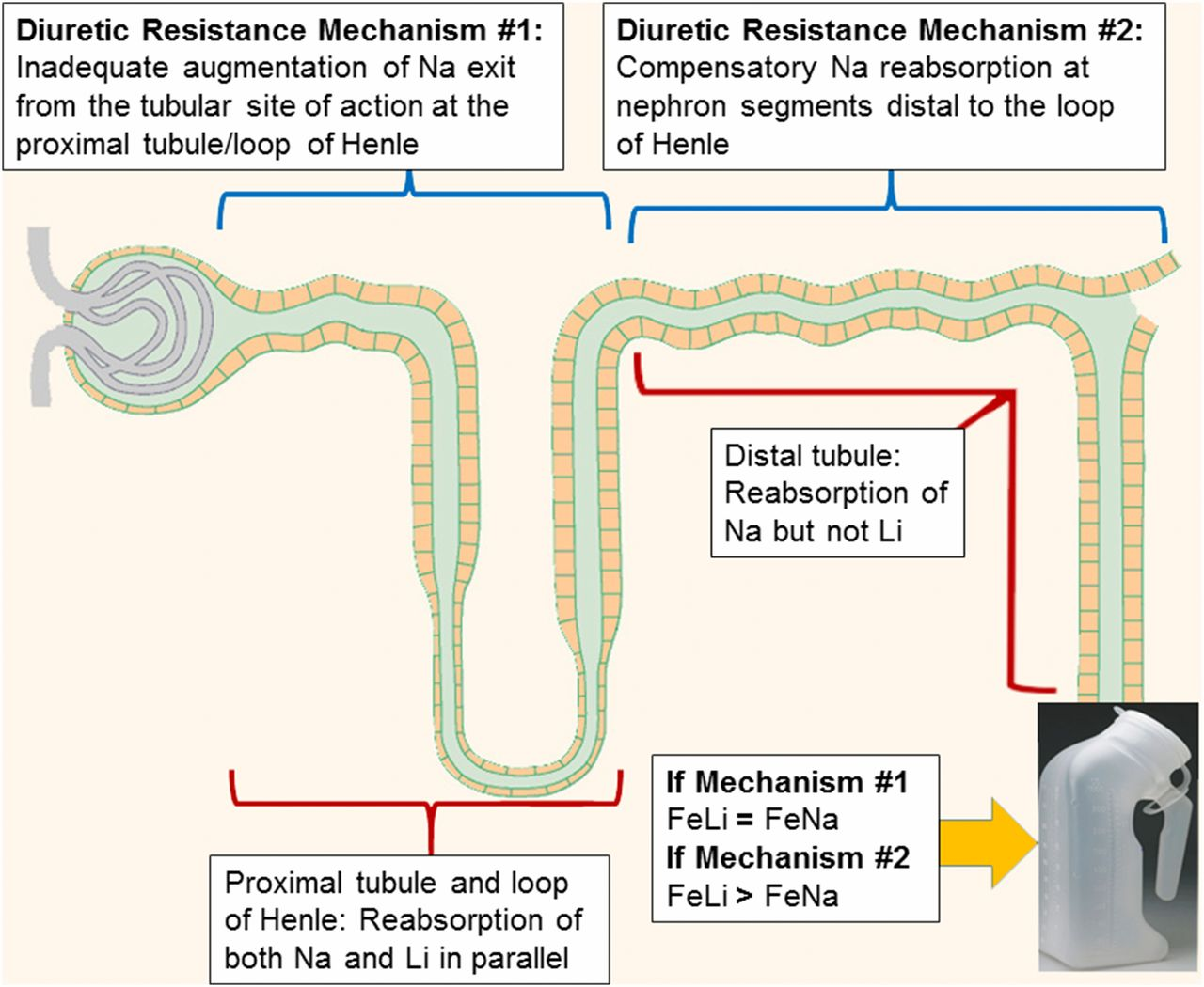 Compensatory Distal Reabsorption Drives Diuretic Resistance In Human Figure1 Cell Phone Jammer Circuit Diagram Download Figure Open New Tab Powerpoint 1 Schematic