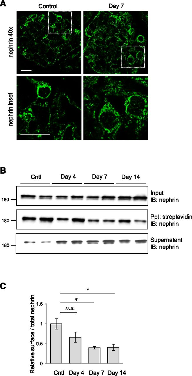 Shca adaptor protein promotes nephrin endocytosis and is upregulated download figure ccuart Images