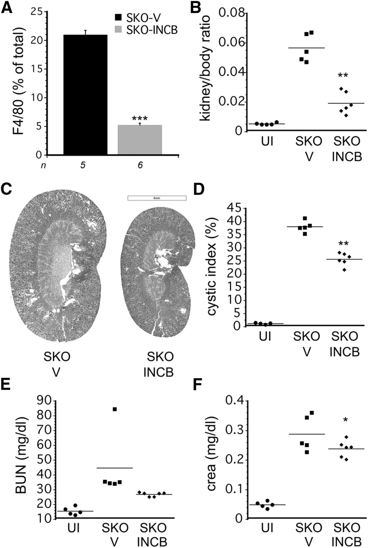 Mcp1 Promotes Macrophage-Dependent Cyst Expansion in Autosomal