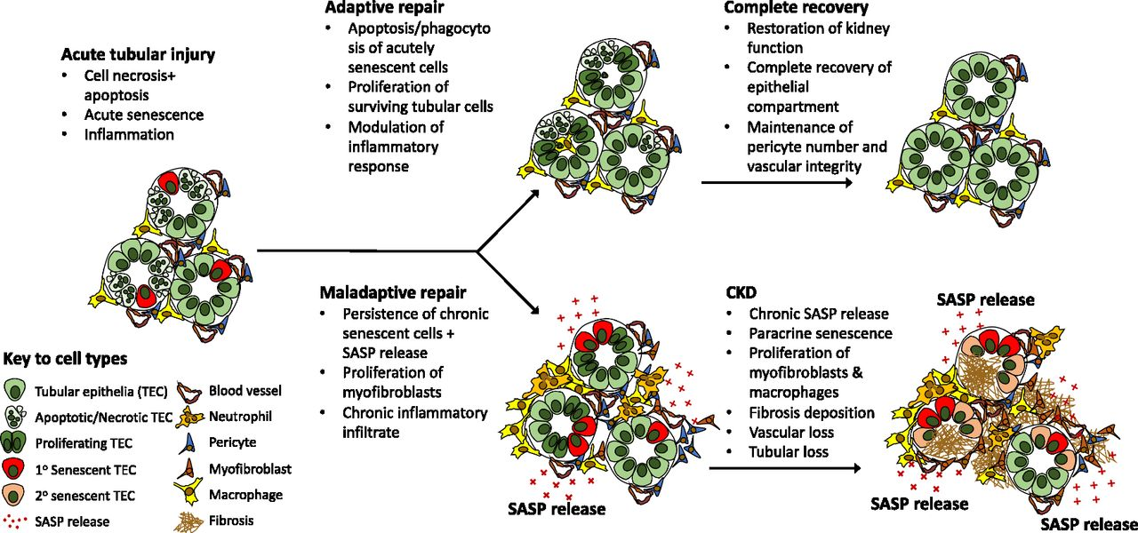 Cellular Senescence in the Kidney | American Society of