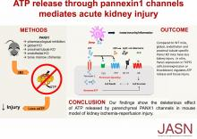 Epithelial and Endothelial Pannexin1 Channels Mediate AKI