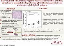 Early Acute Microvascular Kidney Transplant Rejection in the Absence of Anti-HLA Antibodies Is Associated with Preformed IgG Antibodies against Diverse Glomerular Endothelial Cell Antigens
