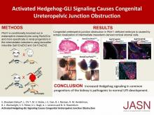 Activated Hedgehog-GLI Signaling Causes Congenital Ureteropelvic Junction Obstruction