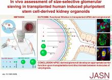 <em>In Vivo</em> Assessment of Size-Selective Glomerular Sieving in Transplanted Human Induced Pluripotent Stem Cell–Derived Kidney Organoids