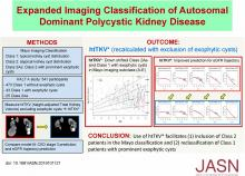 Expanded Imaging Classification of Autosomal Dominant Polycystic Kidney Disease