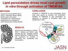 Lipid Peroxidation Drives Renal Cyst Growth <em>In Vitro</em> through Activation of TMEM16A