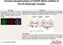 Tyrosine Phosphorylation of CD2AP Affects Stability of the Slit Diaphragm Complex