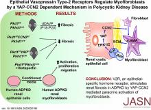 Epithelial Vasopressin Type-2 Receptors Regulate Myofibroblasts by a YAP-CCN2–Dependent Mechanism in Polycystic Kidney Disease
