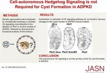 Cell-Autonomous Hedgehog Signaling Is Not Required for Cyst Formation in Autosomal Dominant Polycystic Kidney Disease