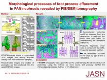 Morphological Processes of Foot Process Effacement in Puromycin Aminonucleoside Nephrosis Revealed by FIB/SEM Tomography