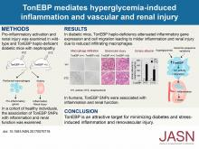 Tonicity-Responsive Enhancer-Binding Protein Mediates Hyperglycemia-Induced Inflammation and Vascular and Renal Injury