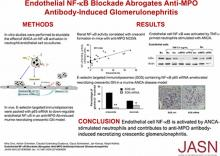 Endothelial NF-<em>κ</em>B Blockade Abrogates ANCA-Induced GN