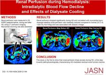 Renal Perfusion during Hemodialysis: Intradialytic Blood Flow Decline and Effects of Dialysate Cooling