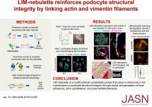 LIM-Nebulette Reinforces Podocyte Structural Integrity by Linking Actin and Vimentin Filaments