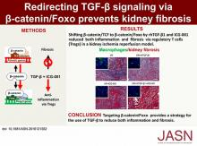 Redirecting TGF-<em>β</em> Signaling through the <em>β</em>-Catenin/Foxo Complex Prevents Kidney Fibrosis