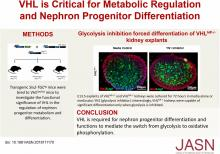 Von Hippel-Lindau Acts as a Metabolic Switch Controlling Nephron Progenitor Differentiation