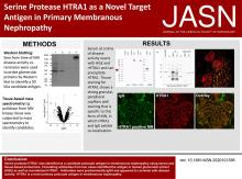 Serine Protease HTRA1 as a Novel Target Antigen in Primary Membranous Nephropathy