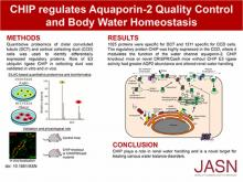 CHIP Regulates Aquaporin-2 Quality Control and Body Water Homeostasis