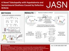 Defects in KCNJ16 Cause a Novel Tubulopathy with Hypokalemia, Salt Wasting, Disturbed Acid-Base Homeostasis, and Sensorineural Deafness