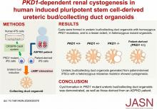 <em>PKD1</em>-Dependent Renal Cystogenesis in Human Induced Pluripotent Stem Cell-Derived Ureteric Bud/Collecting Duct Organoids