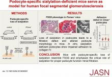 Podocyte-Specific Sialylation-Deficient Mice Serve as a Model for Human FSGS