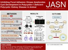 Inhibiting Focal Adhesion Kinase Ameliorates Cyst Development in Polycystin-1–Deficient Polycystic Kidney Disease in Animal Model