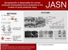 Synaptopodin Is Dispensable for Normal Podocyte Homeostasis but Is Protective in the Context of Acute Podocyte Injury