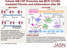 Tubular GM-CSF Promotes Late MCP-1/CCR2-Mediated Fibrosis and Inflammation after Ischemia/Reperfusion Injury