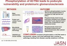 Phosphorylation of ACTN4 Leads to Podocyte Vulnerability and Proteinuric Glomerulosclerosis