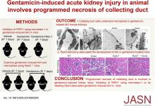 Gentamicin-Induced Acute Kidney Injury in an Animal Model Involves Programmed Necrosis of the Collecting Duct
