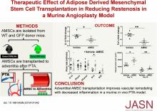 Therapeutic Effect of Adipose Derived Mesenchymal Stem Cell Transplantation in Reducing Restenosis in a Murine Angioplasty Model